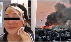 filipina dh-injured-in-lebanon